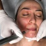 Woman face under a microneedling treatment