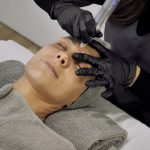 woman face having a micropricking treatment